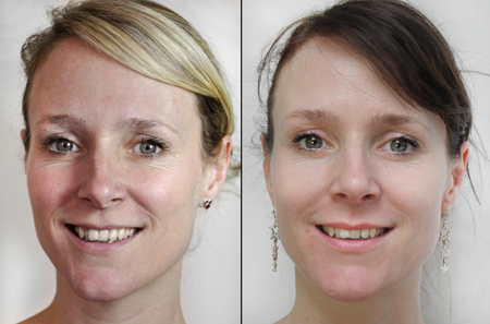 Skin Needling Model 2 - Before and After