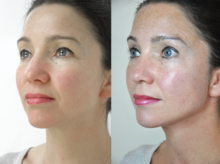 Skin Needling Model 1 before and after