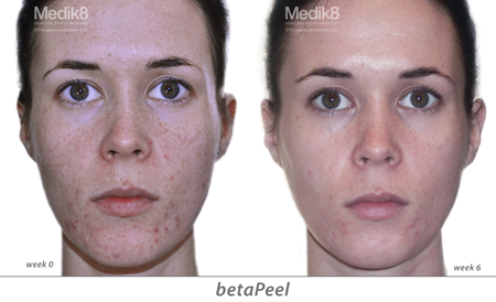 Medik8 Peel at Skin Plus Bunbury - Medik8 Medical Grade Peels